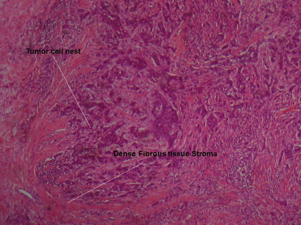 Invasion of Breast Adipose Tissue