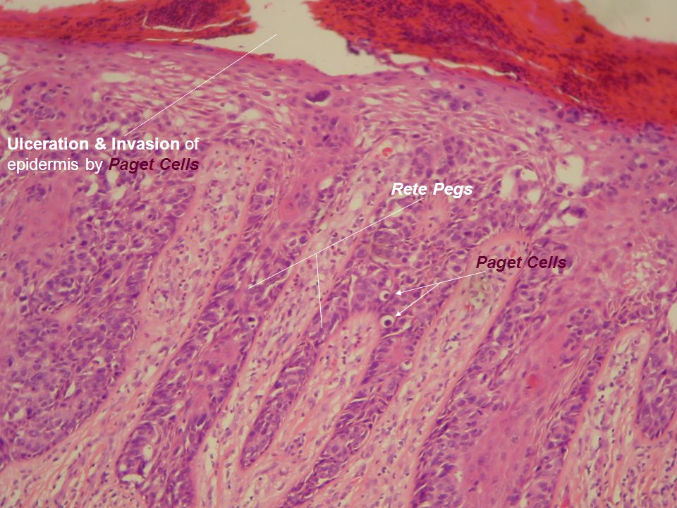 Rete Pegs Ulceration & Invasion of epidermis by Paget Cells Paget Cells