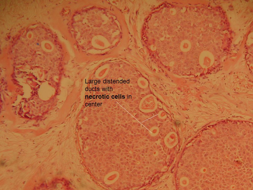 Large distended ducts with necrotic cells in center