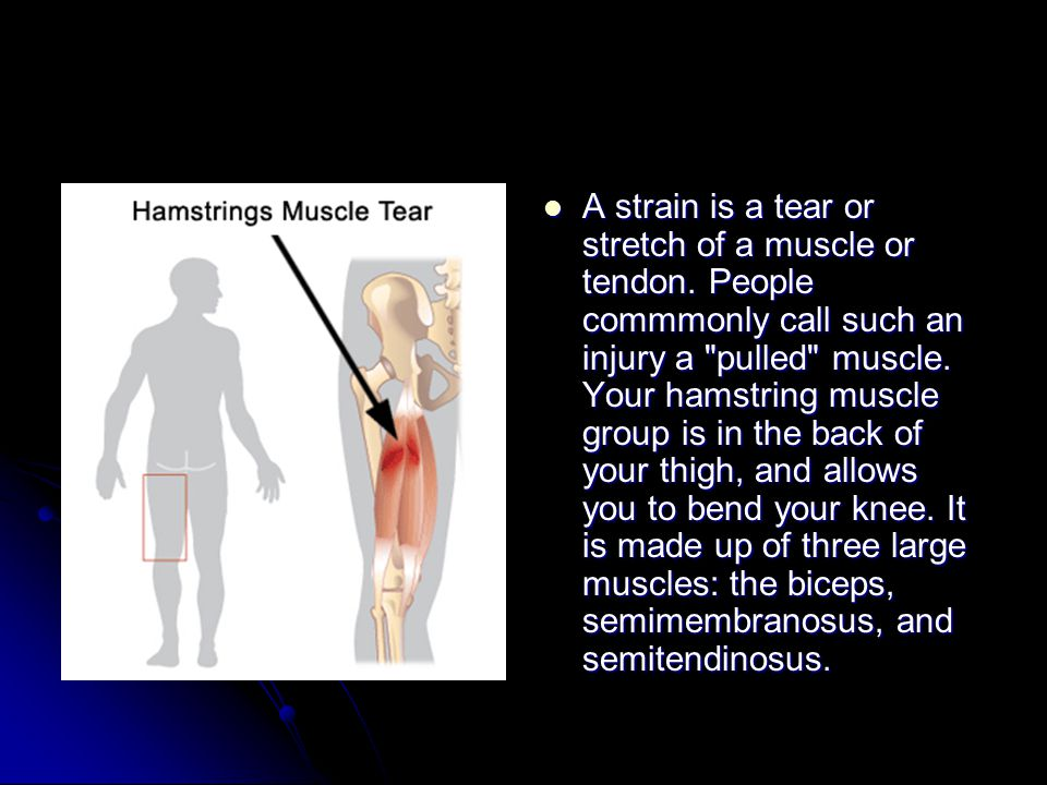 A strain is a tear or stretch of a muscle or tendon.