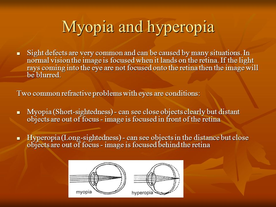 Myopia and hyperopia Sight defects are very common and can be caused by many situations. In normal vision the image is focused when it lands on the re