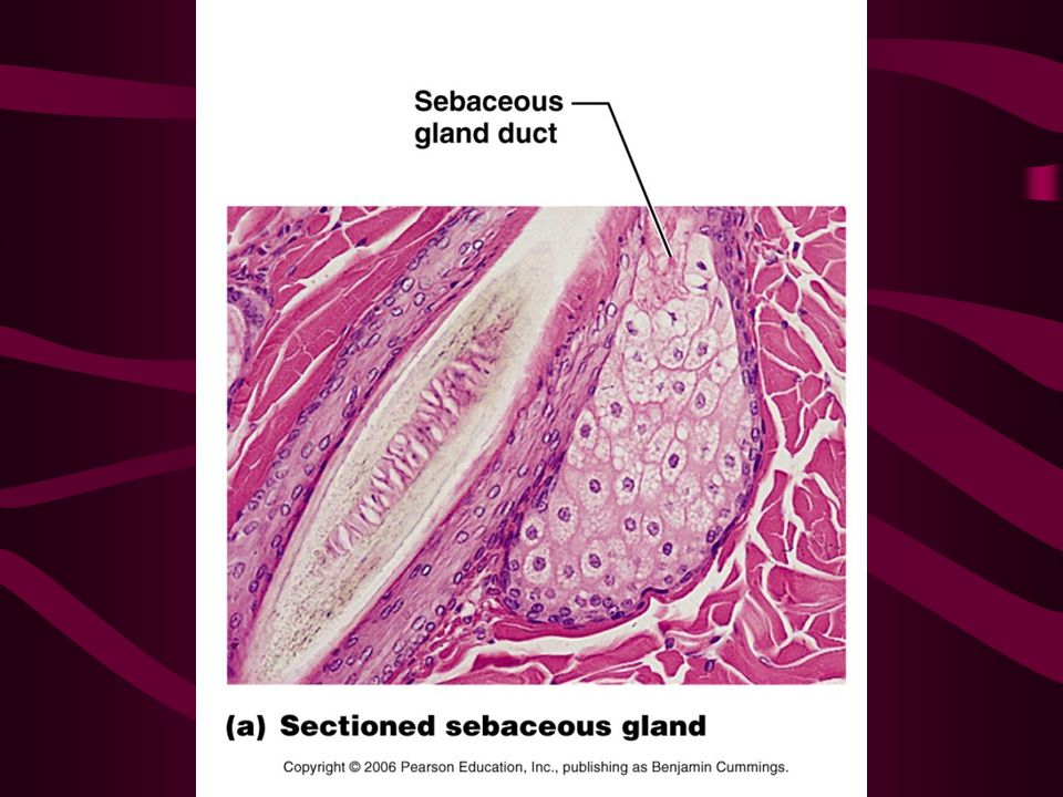 Blocked duct: Whitehead is formed if this oxidizes and dries it becomes a blackhead Seborrhea: (Cradle Cap) –in infants is over secretion of sebaceous glands