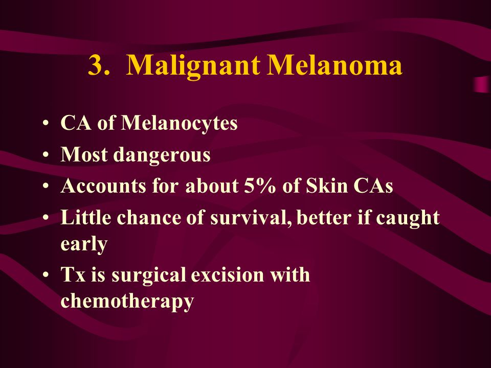 3. Malignant Melanoma CA of Melanocytes Most dangerous Accounts for about 5% of Skin CAs Little chance of survival, better if caught early Tx is surgi