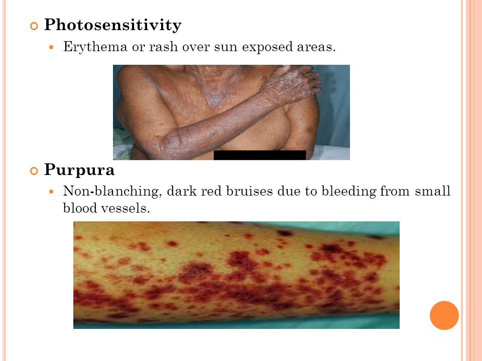 Photosensitivity Erythema or rash over sun exposed areas.