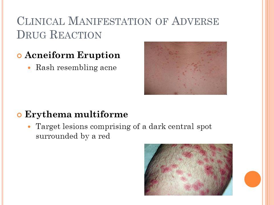C LINICAL M ANIFESTATION OF A DVERSE D RUG R EACTION Acneiform Eruption Rash resembling acne Erythema multiforme Target lesions comprising of a dark central spot surrounded by a red