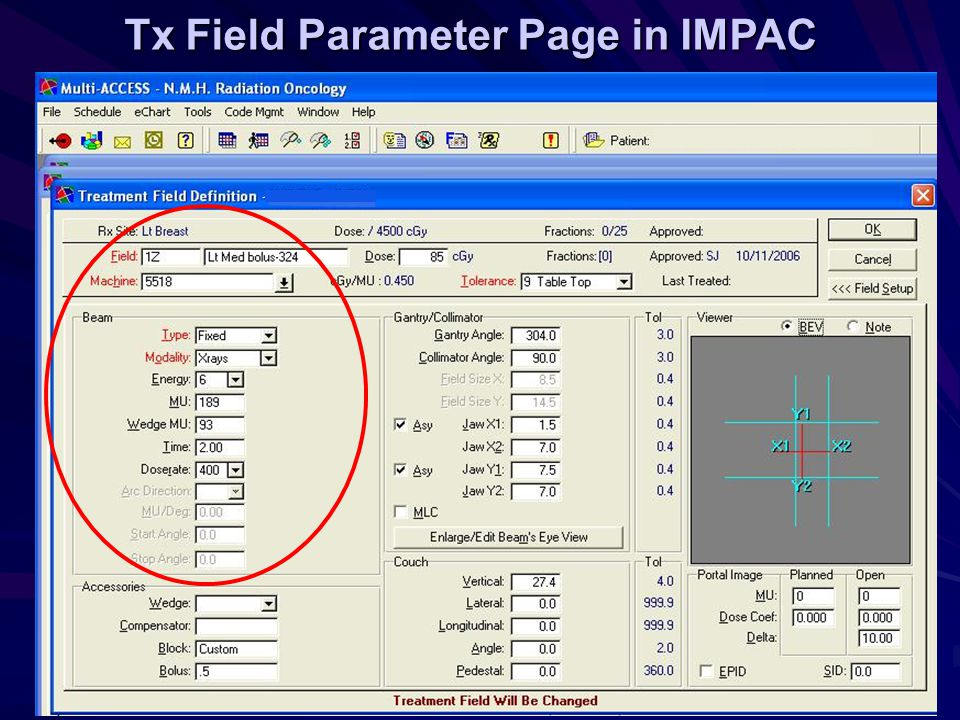 Tx Field Parameter Page in IMPAC