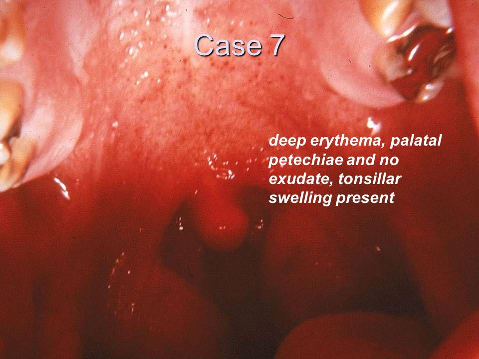 Case 7 deep erythema, palatal petechiae and no exudate, tonsillar swelling present