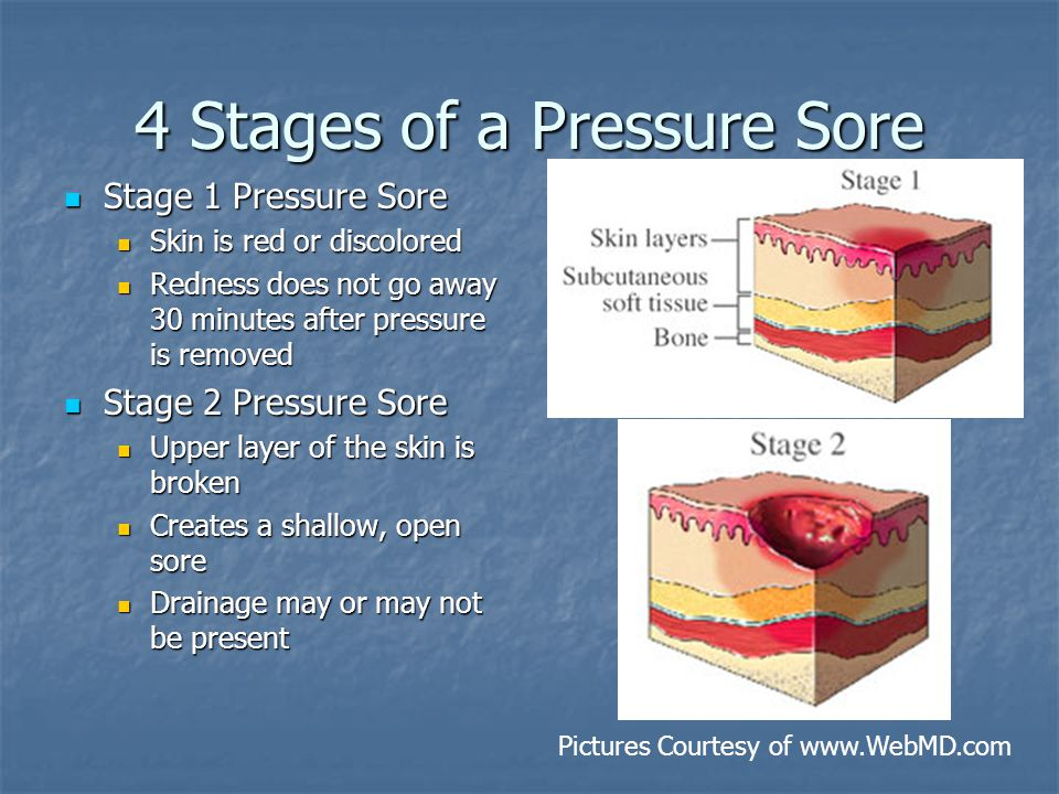 4 Stages of a Pressure Sore Stage 1 Pressure Sore Stage 1 Pressure Sore Skin is red or discolored Skin is red or discolored Redness does not go away 30 minutes after pressure is removed Redness does not go away 30 minutes after pressure is removed Stage 2 Pressure Sore Stage 2 Pressure Sore Upper layer of the skin is broken Upper layer of the skin is broken Creates a shallow, open sore Creates a shallow, open sore Drainage may or may not be present Drainage may or may not be present Pictures Courtesy of www.WebMD.com