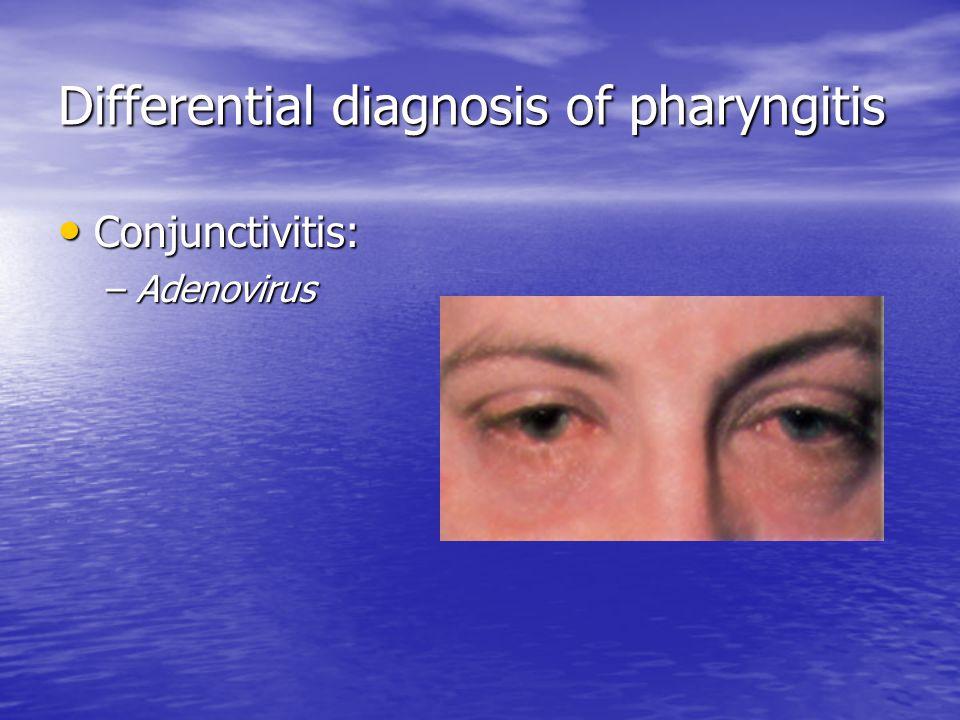 Differential diagnosis of pharyngitis Conjunctivitis: Conjunctivitis: –Adenovirus