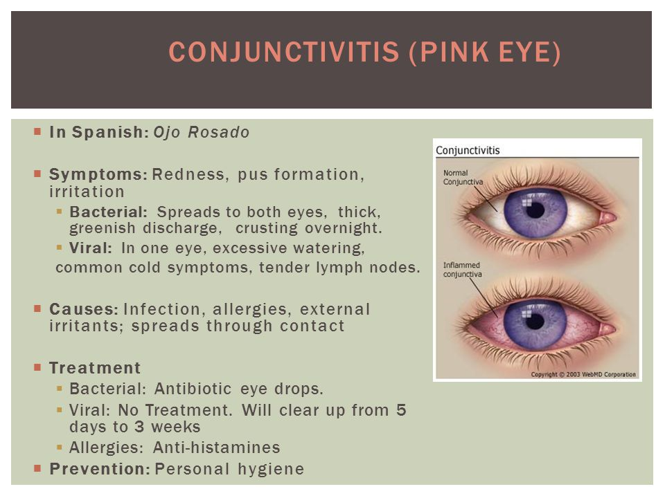  In Spanish: Ojo Rosado  Symptoms: Redness, pus formation, irritation  Bacterial: Spreads to both eyes, thick, greenish discharge, crusting overnight.