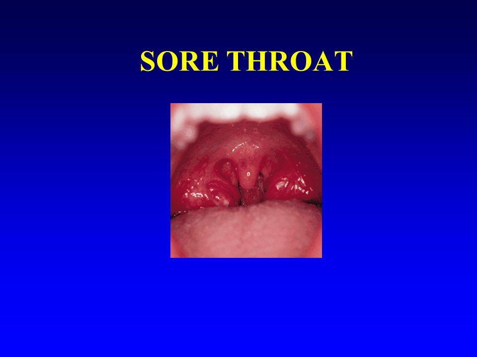 Sore throat n VAST MAJORITY (OVER TWO THIRDS) - VIRAL – DO NOT NEED ANTIBIOTICS