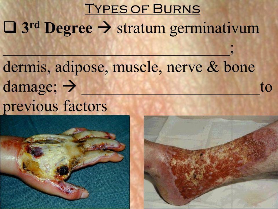  3 rd Degree  stratum germinativum ____________________________; dermis, adipose, muscle, nerve & bone damage;  ______________________to previous f