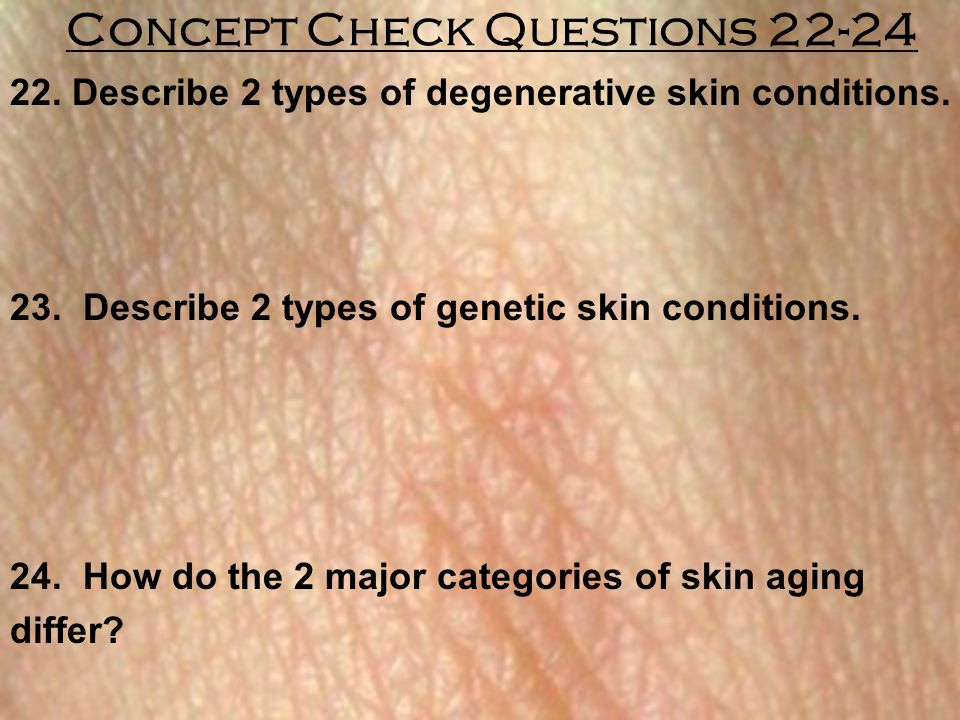Concept Check Questions 22-24 22. Describe 2 types of degenerative skin conditions. 23. Describe 2 types of genetic skin conditions. 24. How do the 2