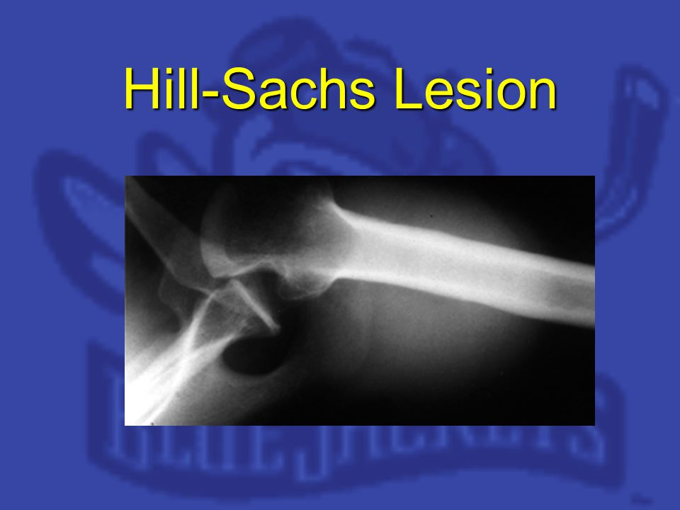 Hill-Sachs Lesion