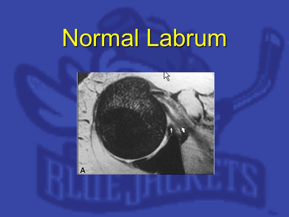 Normal Labrum