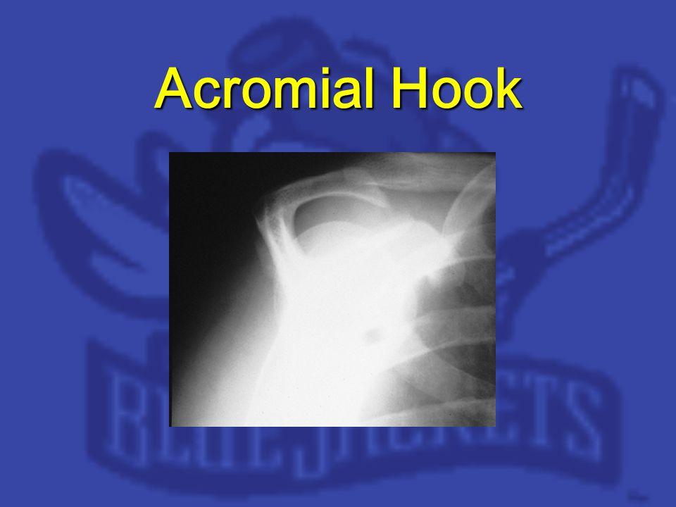 Acromial Hook