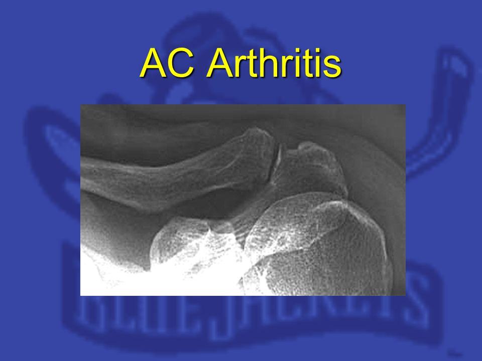 AC Arthritis