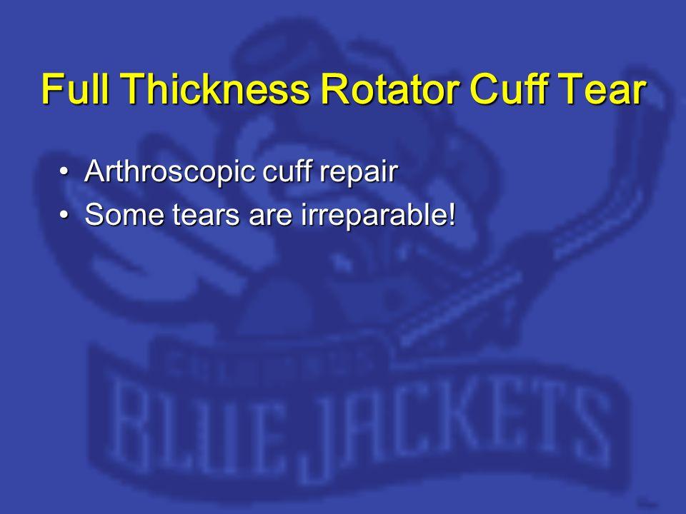 Full Thickness Rotator Cuff Tear Arthroscopic cuff repairArthroscopic cuff repair Some tears are irreparable!Some tears are irreparable!