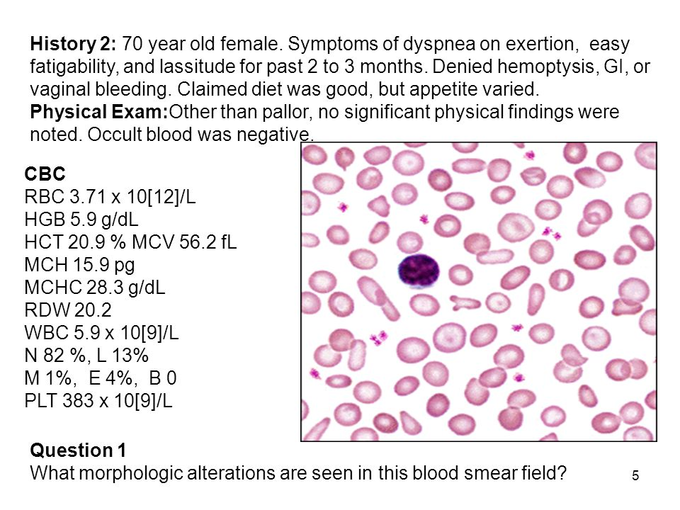 6 Answer 1 Morphologic Alterations Results of the blood smear exam were: RBC morphology: 2+ hypochromasia 3+ microcytosis 2+ anisocytosis 2+ elliptocytes and target cells occ teardrops and fragments WBC morphology: Within normal limits (one lymphocyte shown here) PLT morphology: Within normal limits Question 2 What further laboratory studies, if any, are indicated?