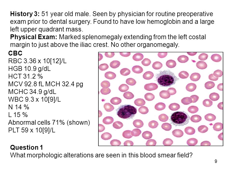 10 Answer 1 Morphologic Alterations Results of the blood smear exam were: RBC morphology: Normocytic, normochromic WBC morphology: The abnormal cells have round or indented nuclei with a fairly coarse chromatin pattern.