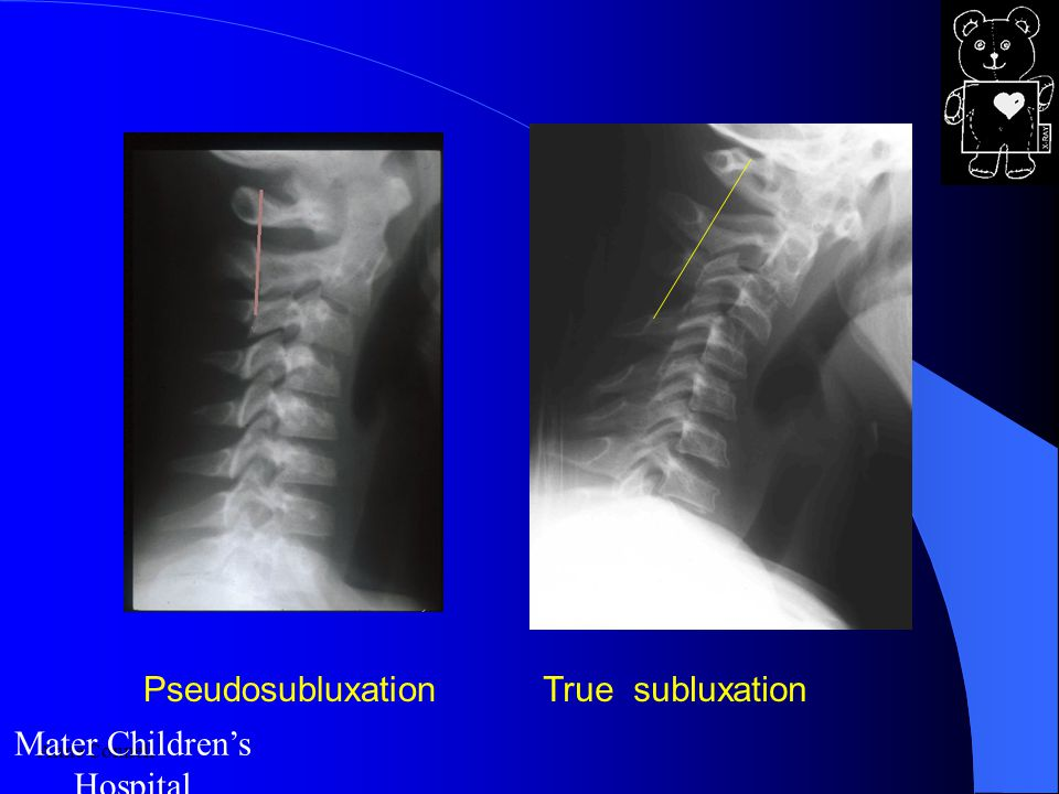 Anne Connell Mater Children's Hospital PseudosubluxationTrue subluxation