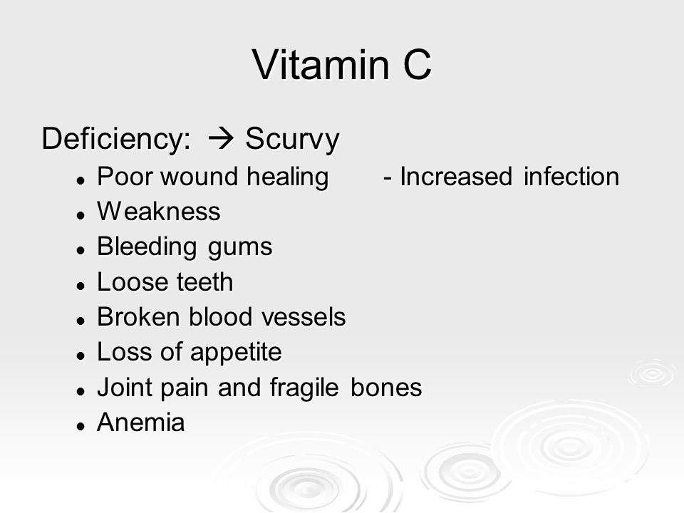 Vitamin C Deficiency:  Scurvy Poor wound healing- Increased infection Poor wound healing- Increased infection Weakness Weakness Bleeding gums Bleedin
