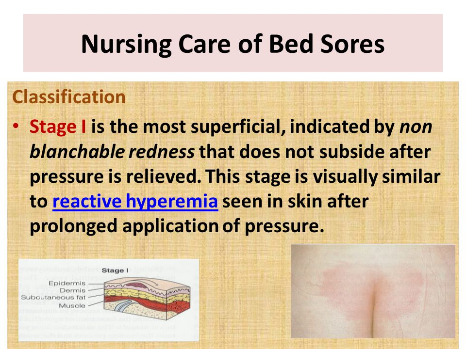 Classification Stage I is the most superficial, indicated by non blanchable redness that does not subside after pressure is relieved. This stage is vi