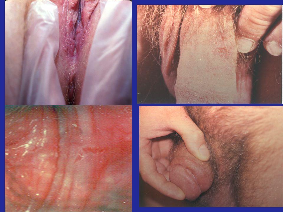 Slide #15 CL Celum, MD, MPH. Presented at RWCA Clinical Update, August 2006.