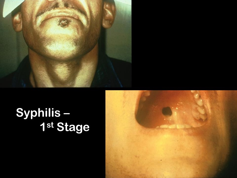 Symptoms – Stage 1 Symptoms usually appear 10-90 days after contact. An infected person gets a sore (chancre), which may be painful at the point of co