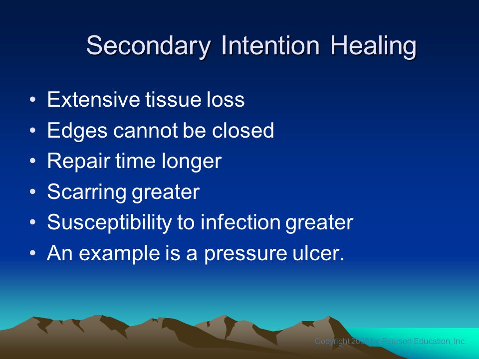 Copyright 2008 by Pearson Education, Inc. Secondary Intention Healing Extensive tissue loss Edges cannot be closed Repair time longer Scarring greater