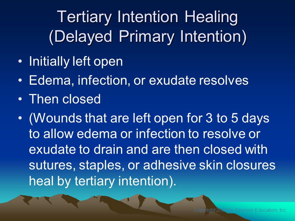 Copyright 2008 by Pearson Education, Inc. Tertiary Intention Healing (Delayed Primary Intention) Initially left open Edema, infection, or exudate reso