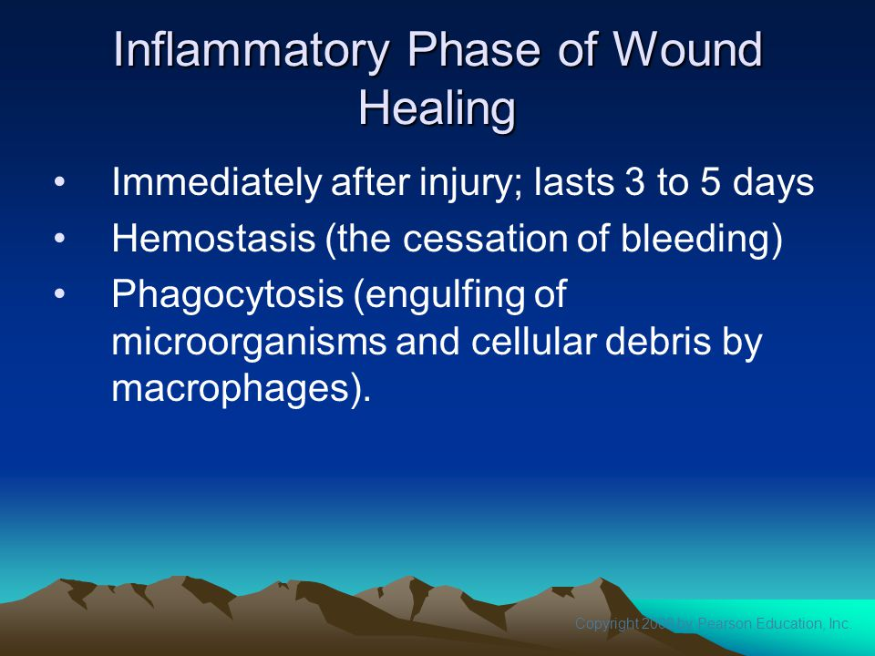 Copyright 2008 by Pearson Education, Inc. Inflammatory Phase of Wound Healing Immediately after injury; lasts 3 to 5 days Hemostasis (the cessation of