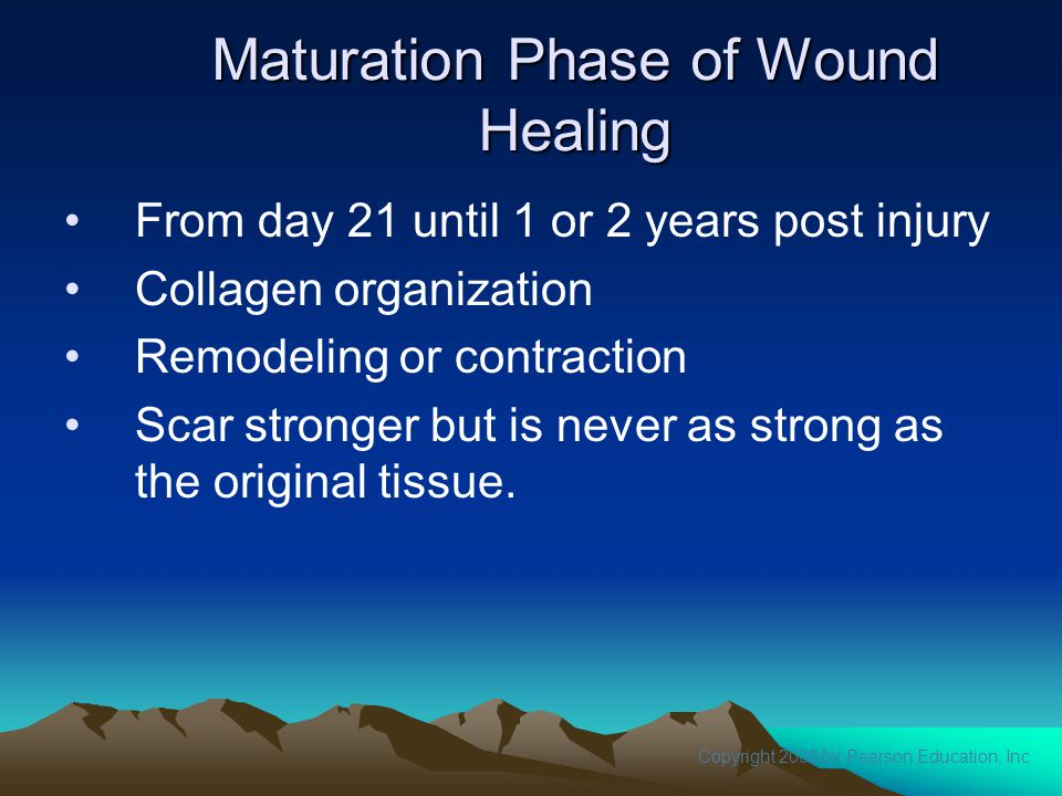Copyright 2008 by Pearson Education, Inc. Maturation Phase of Wound Healing From day 21 until 1 or 2 years post injury Collagen organization Remodelin