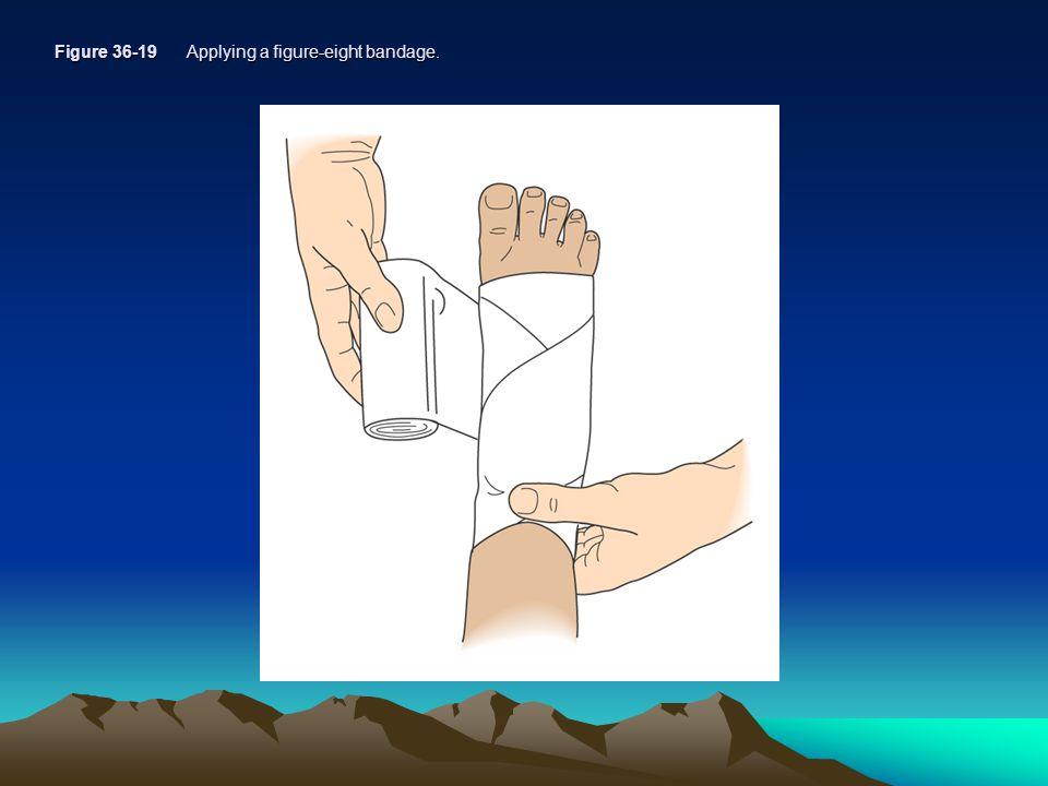Figure 36-19 Applying a figure-eight bandage.