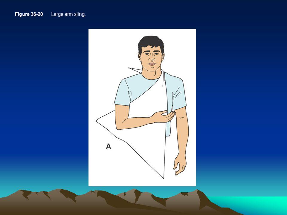 Figure 36-20 Large arm sling.