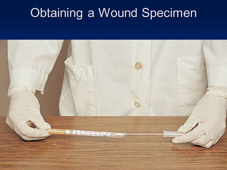 Copyright 2008 by Pearson Education, Inc. Obtaining a Wound Specimen