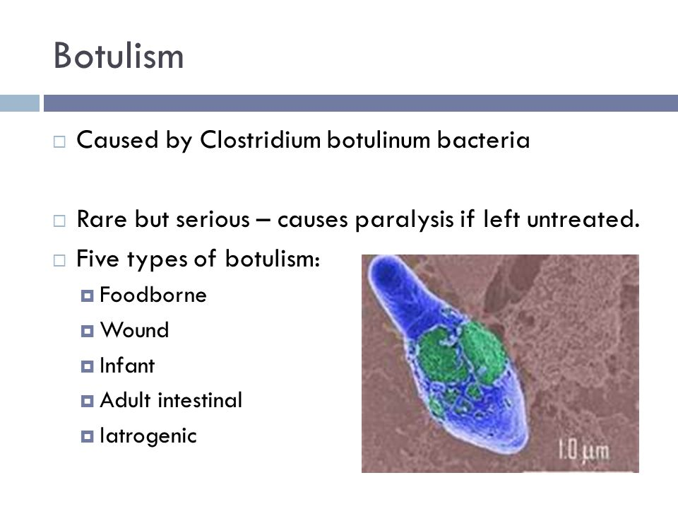 Botulism  Caused by Clostridium botulinum bacteria  Rare but serious – causes paralysis if left untreated.