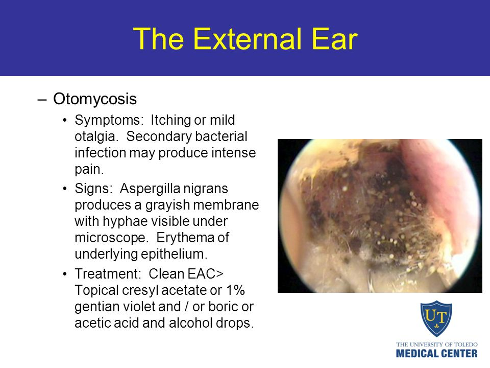 The External Ear –Otomycosis Symptoms: Itching or mild otalgia. Secondary bacterial infection may produce intense pain. Signs: Aspergilla nigrans prod