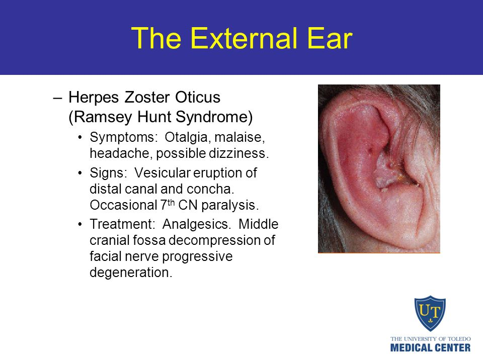 The External Ear –Herpes Zoster Oticus (Ramsey Hunt Syndrome) Symptoms: Otalgia, malaise, headache, possible dizziness. Signs: Vesicular eruption of d