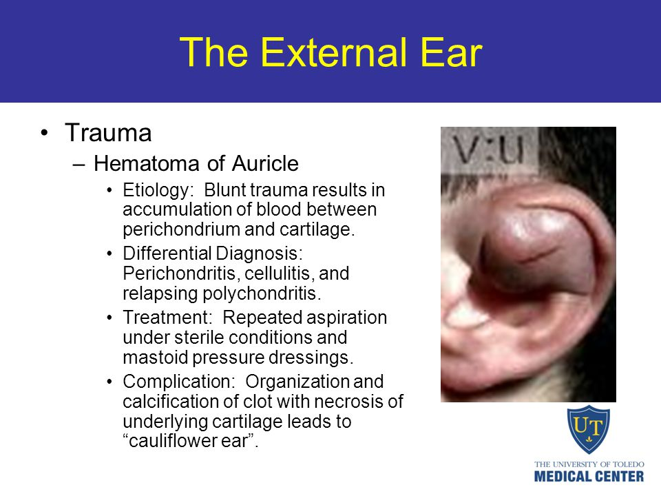 The External Ear Trauma –Hematoma of Auricle Etiology: Blunt trauma results in accumulation of blood between perichondrium and cartilage. Differential