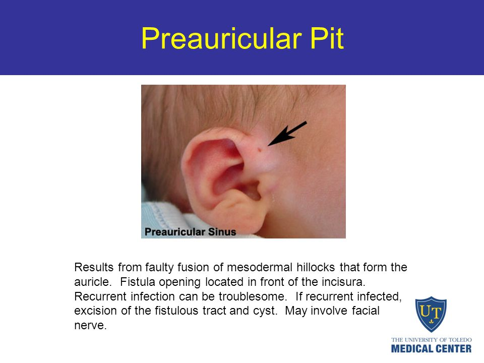 Preauricular Pit Results from faulty fusion of mesodermal hillocks that form the auricle. Fistula opening located in front of the incisura. Recurrent