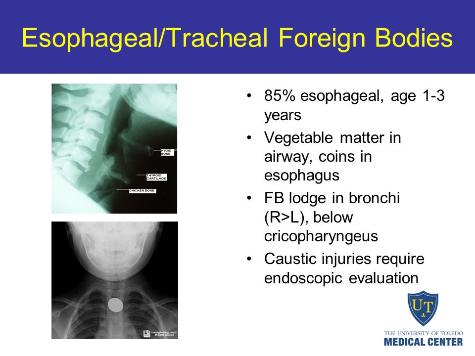 Esophageal/Tracheal Foreign Bodies 85% esophageal, age 1-3 years Vegetable matter in airway, coins in esophagus FB lodge in bronchi (R>L), below crico