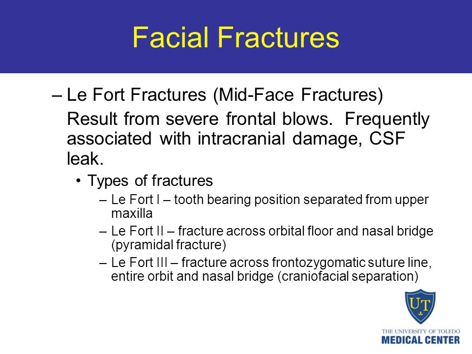 Facial Fractures –Le Fort Fractures (Mid-Face Fractures) Result from severe frontal blows. Frequently associated with intracranial damage, CSF leak. T