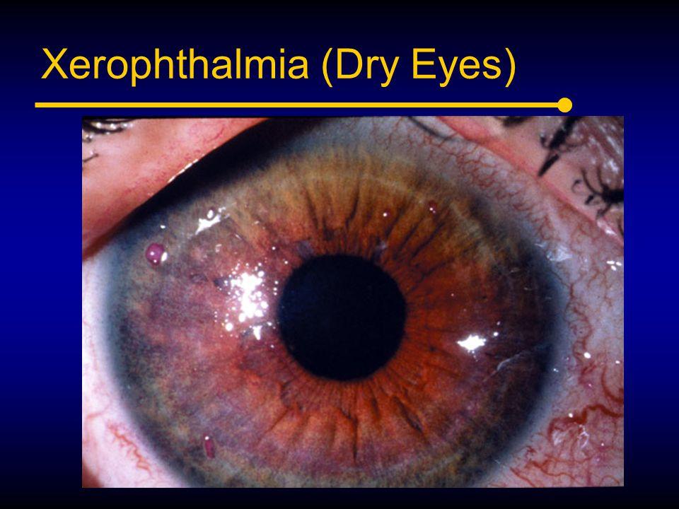 Xerophthalmia (Dry Eyes)