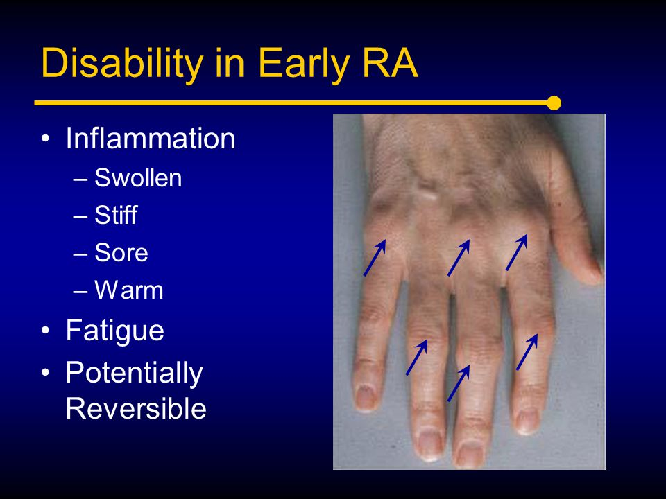 Disability in Early RA Inflammation –Swollen –Stiff –Sore –Warm Fatigue Potentially Reversible