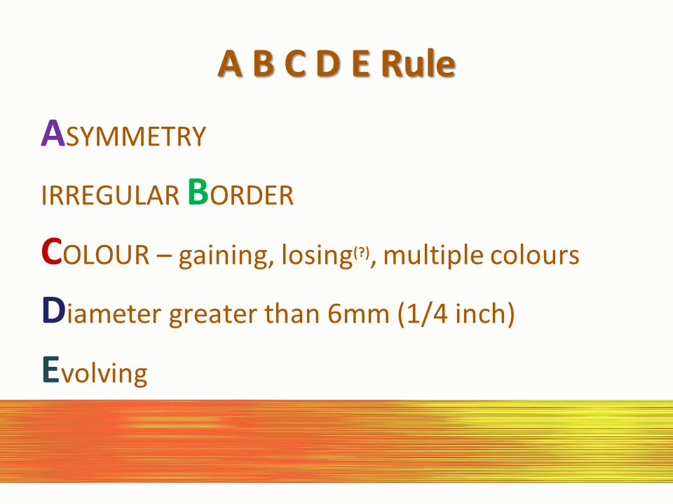 A B C D E Rule A SYMMETRY IRREGULAR B ORDER C OLOUR – gaining, losing (?), multiple colours D iameter greater than 6mm (1/4 inch) E volving