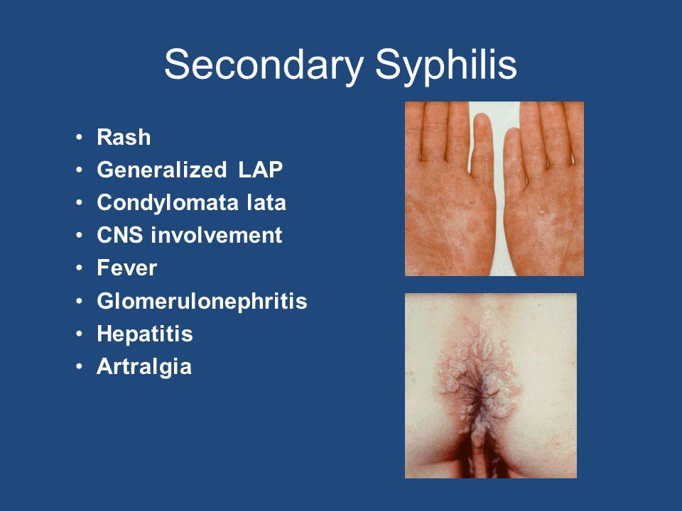 Secondary Syphilis Rash Generalized LAP Condylomata lata CNS involvement Fever Glomerulonephritis Hepatitis Artralgia