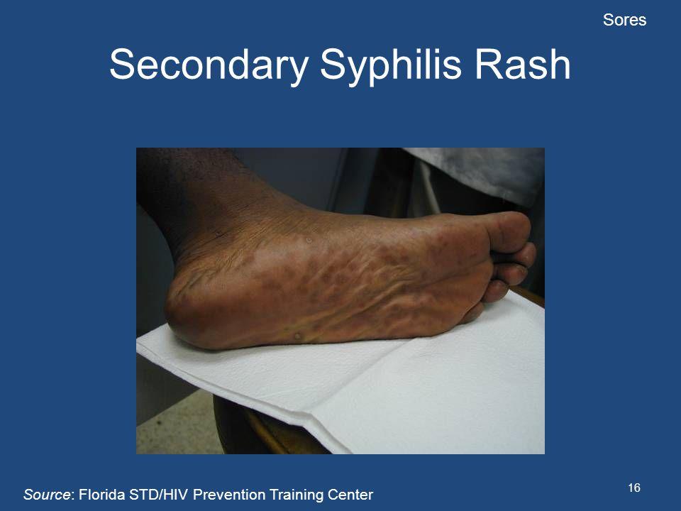 16 Secondary Syphilis Rash Sores Source: Florida STD/HIV Prevention Training Center