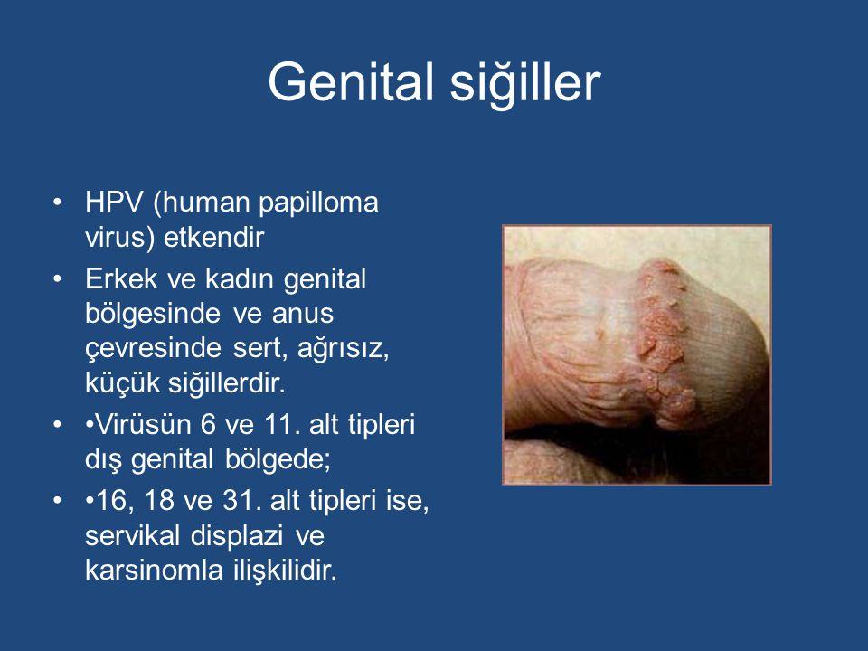 Genital siğiller HPV (human papilloma virus) etkendir Erkek ve kadın genital bölgesinde ve anus çevresinde sert, ağrısız, küçük siğillerdir. Virüsün 6