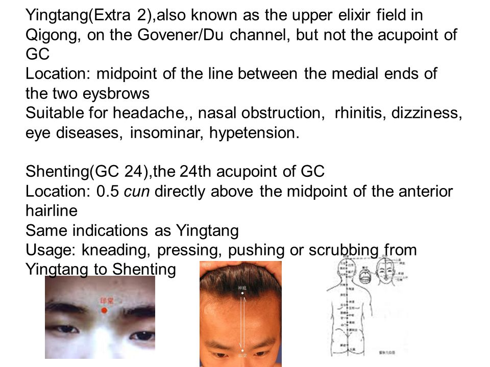 Zanzhu(BL 2), 2 nd acupoint of the meridian of bladder located directly above the inner corner of the eye on the inside end of the eyebrow (you will feel a little notch in the bone there and it will be quite sore).